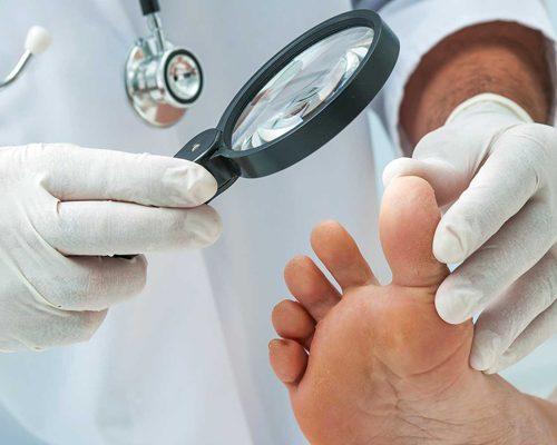 le traitement médical du panaris est recommandé en cas d'infection trop importante ou trop étendue
