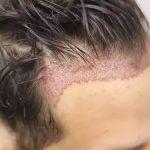 Greffe de cheveux : tout ce qu'il faut savoir !